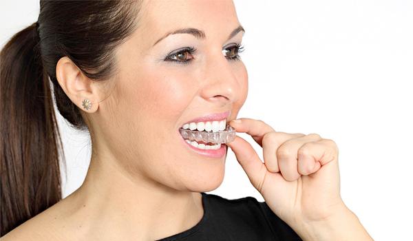 Estétdica Dental Bilbao